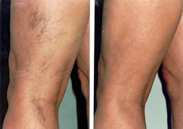 Veins-Legs