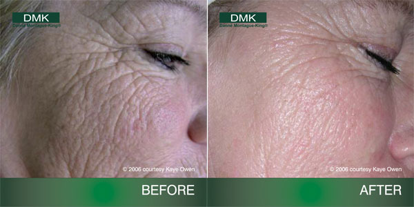 DMK Facials   Manor Lodge Health & Beauty – Castle Cary Somerset